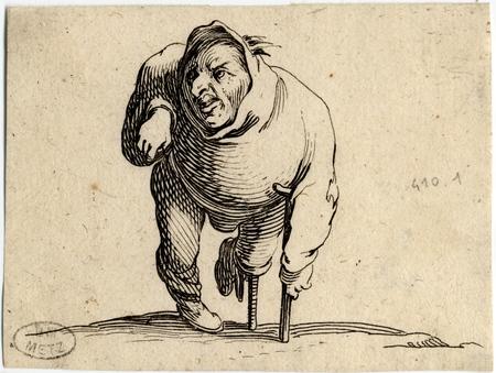 Les Gobbi: L'estropié à la béquille et à la jambe de bois